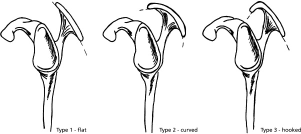 The acromion 'impinges' on the rotator cuff and bursa