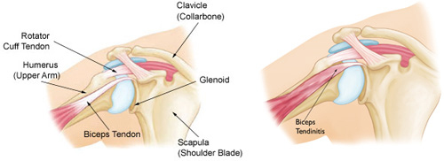 Biceps Tendinitis and Tendon Tears