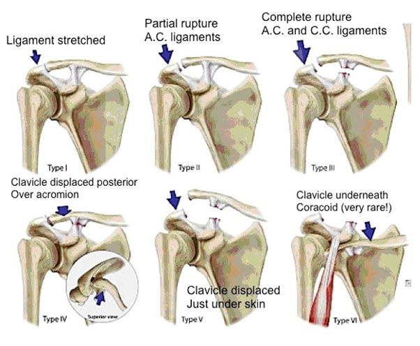 Acromioclavicular Joint Dislocation Severity