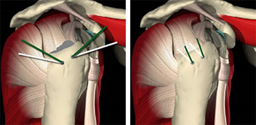 Rotator cuff muscles repaired