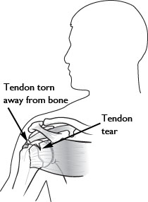Tendon tear