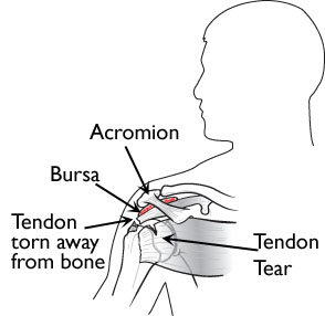 Rotator Cuff Tendinitis and Tears
