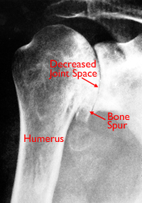 Shoulder X-Rays