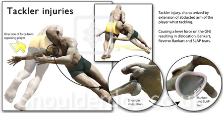 Tackler Injuries