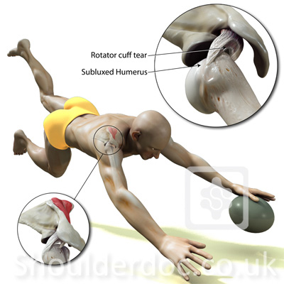 rugby try injury