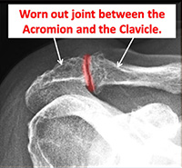 Worn out joint between the Acromion and the Clavicle